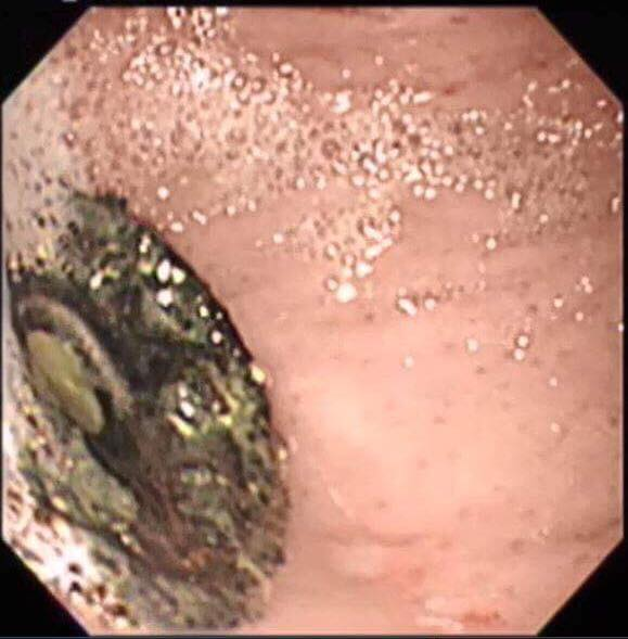 胃内の異物