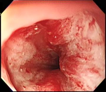 結石が詰まっていた尿道の炎症